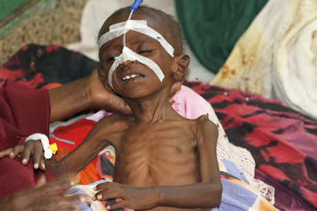A malnourished child is seen inside a pediatric ward at the Banadir hospital in Somalia's capital Mogadishu (Reuters file)