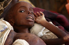 Malnourished refugee rests at a Medecins Sans Frontieres camp (Reuters)