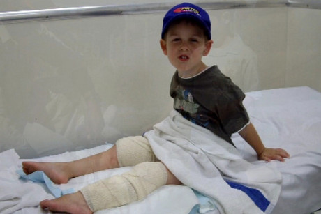 Ethan Hughes was three years old when he was attacked during a family visit to Zion Wildlife Park