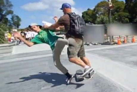 A teen skater is attacked by a man, allegedly hired as security