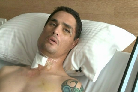 Sean Kenzie was hit by a van while riding a scooter and his full travel insurance didn't cover treatment