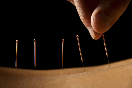 The man practiced as an unlicensed, self-styled acupuncturist (file)