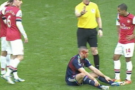 Jon Walters after his head clash with Nacho Monreal