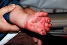 Hand, foot and mouth disease causes a rash